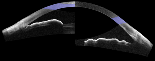 OCT-of-Angle-Before-and-After-Cataract-Surgery.png