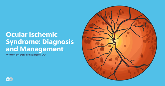 Ocular Ischemic Syndrome: Diagnosis and Management