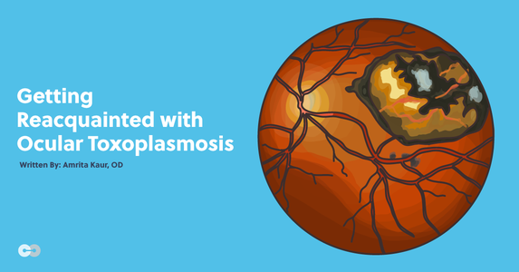 Getting Reacquainted with Ocular Toxoplasmosis