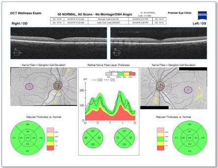 Ocular-Wellness-Exam.png
