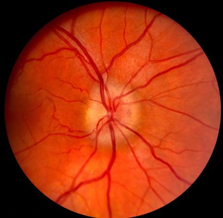 Optic-Nerve-Edema.png