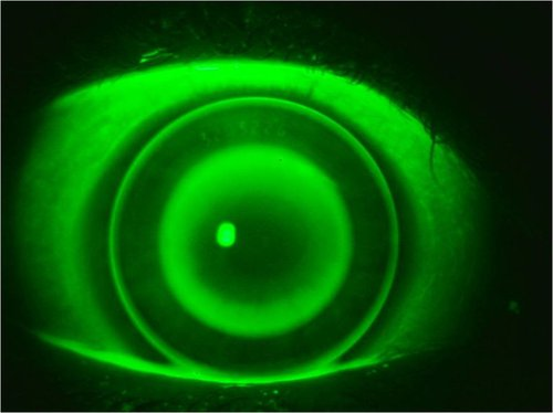 Orthokeratology image: Empirically fit lens from K's, Rx, and HVID