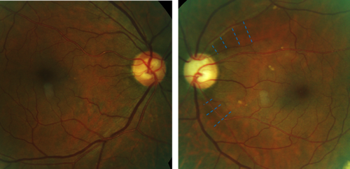 RNFL-Wedge-Defect-Due-to-Glaucoma-768x373.png