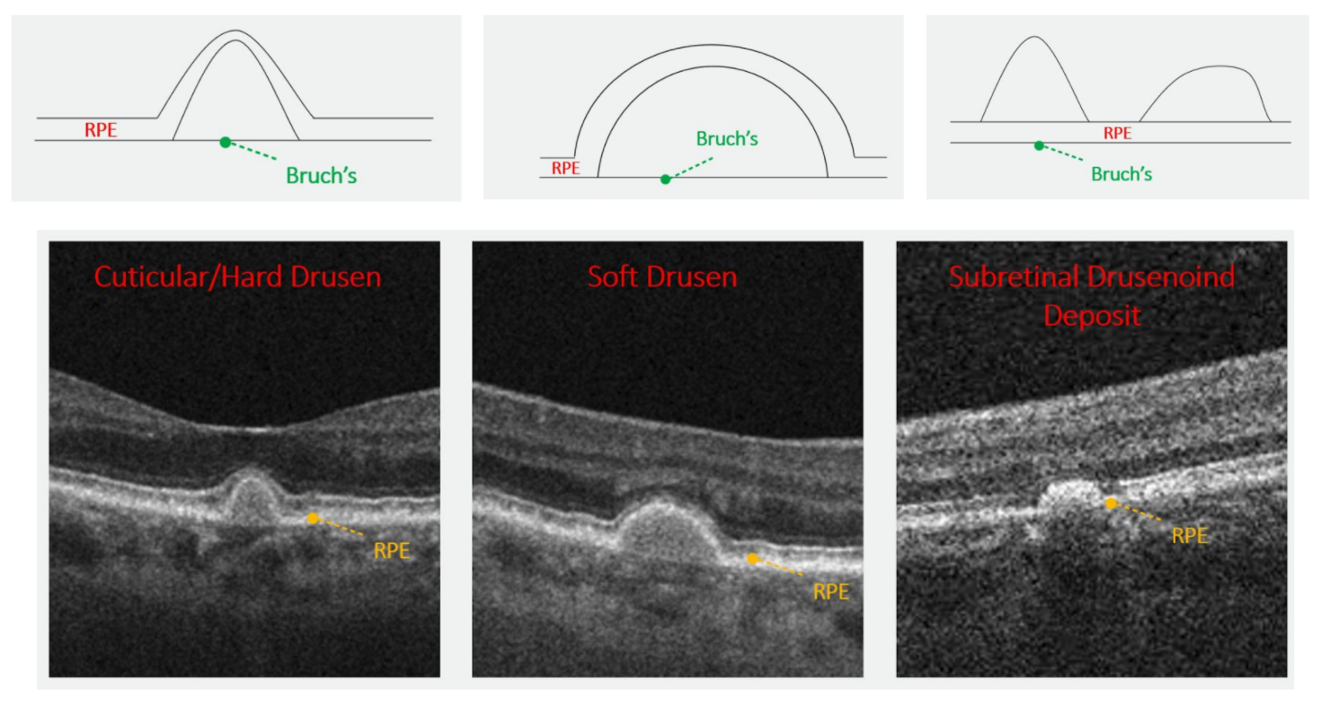 Note the distinct appearance between each drusen type when imaged with OCT