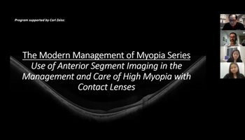 The Modern Management of Myopia Series (Part 2): Use of Anterior Segment Imaging in the Management and  Care of High Myopia with Contact Lenses