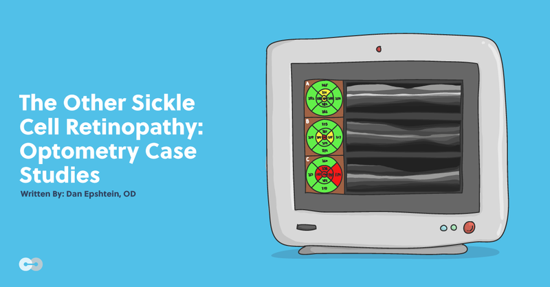The Other Sickle Cell Retinopathy: Optometry Case Studies