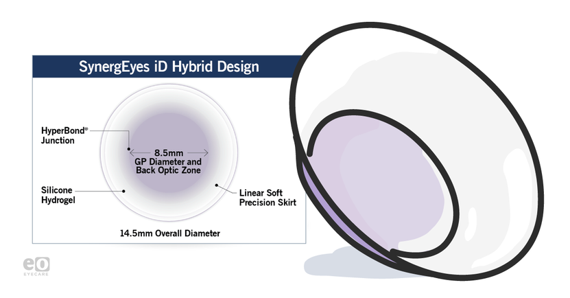 Introducing the Next Generation in Hybrid Contact Lenses: SynergEyes iD