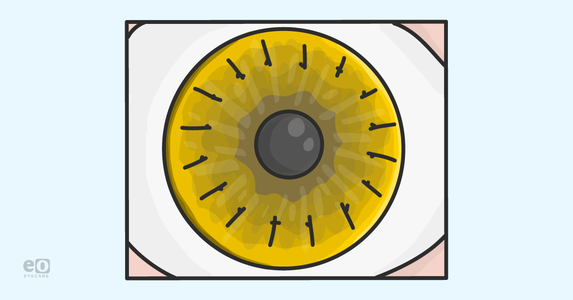 What ODs Should Know About Corneal Transplants