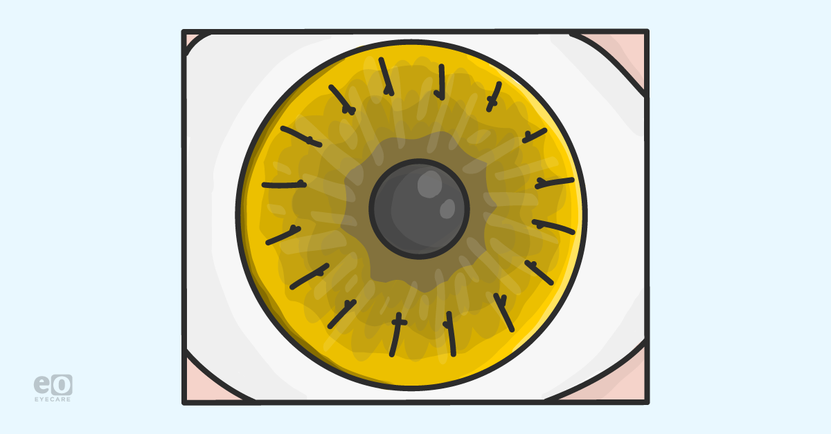 The-Optometrist's-Guide-to-Corneal-Transplants_Featured-Images.png