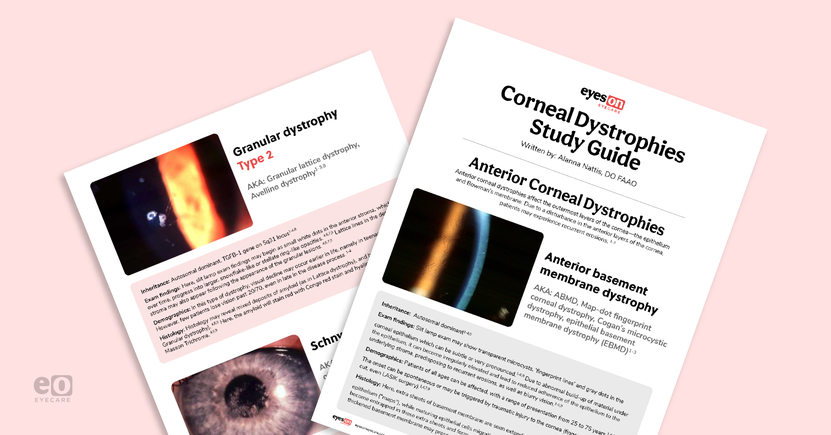 The Ultimate Corneal Dystrophies Study Guide