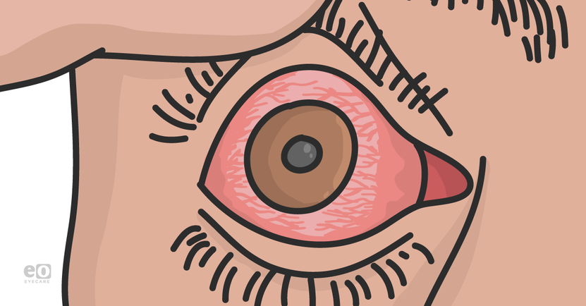 A Modern Framework for Uveitis Diagnosis and Treatment