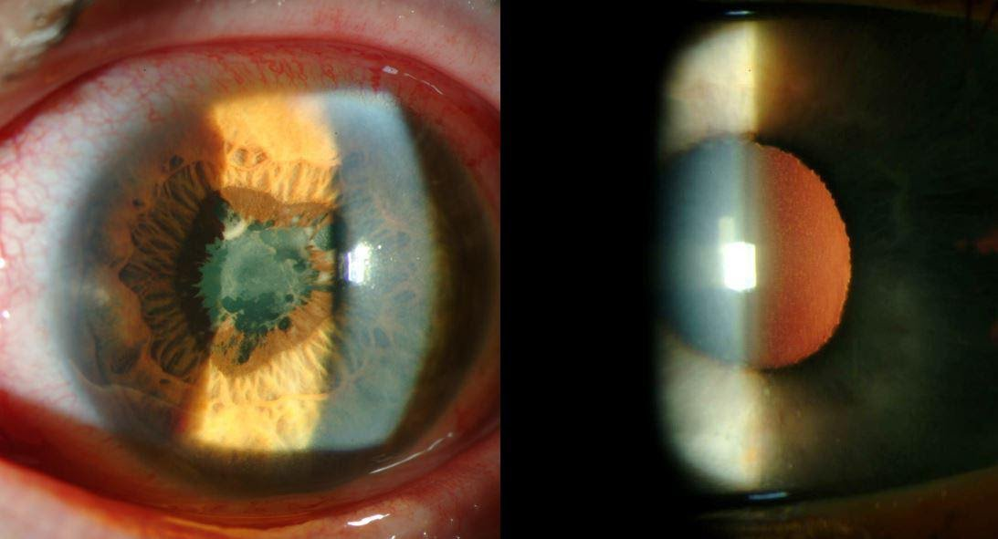 Figure 3: Presentation of idiopathic iridocyclitis with conjunctival injection, anterior chamber reaction, iris transillumination defects and posterior synechiae.