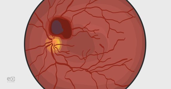 Valsalva Retinopathy: From Diagnosis to Intervention