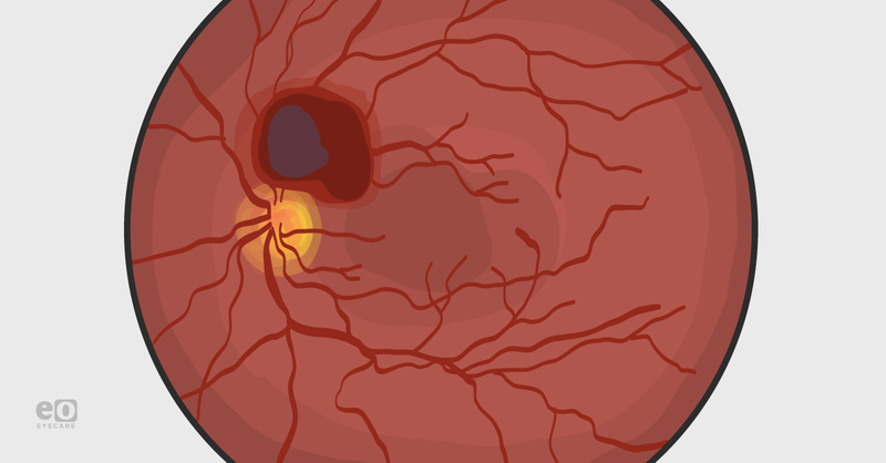 Valsalva Retinopathy: From Diagnosis to Intervention