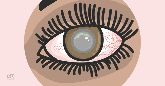 Managing Acanthamoeba Keratitis as an Ophthalmology Resident