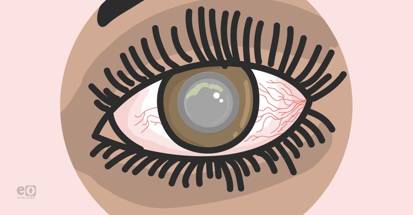 Managing Acanthamoeba Keratitis as an Ophthalmology Resident