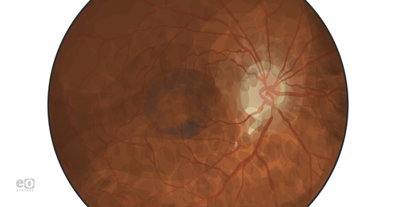 Ophthalmology Case Study: Pentosan Maculopathy Mimicking Pattern Dystrophy
