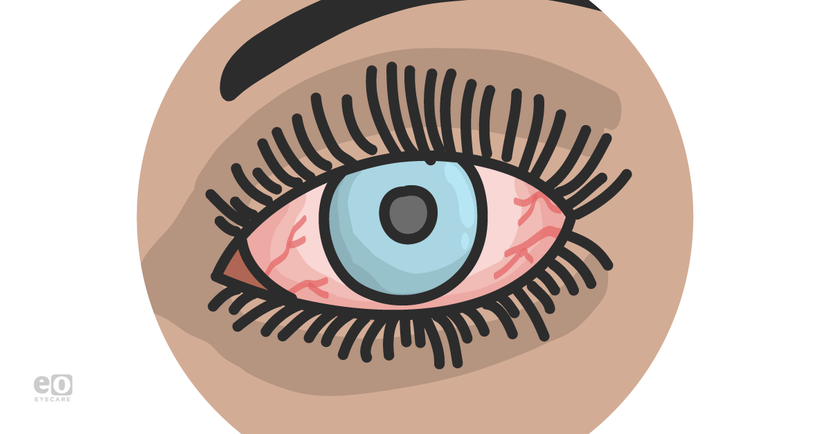 ZOOM_optometrists-guide-red-eye_Featured-Images.png