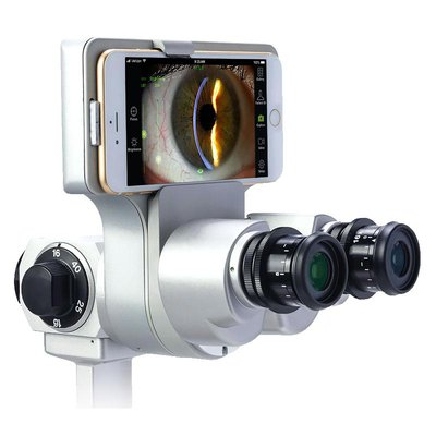 Anterior Segment Camera