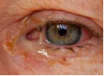 bacterial-conjunctivitis-red-ey.png