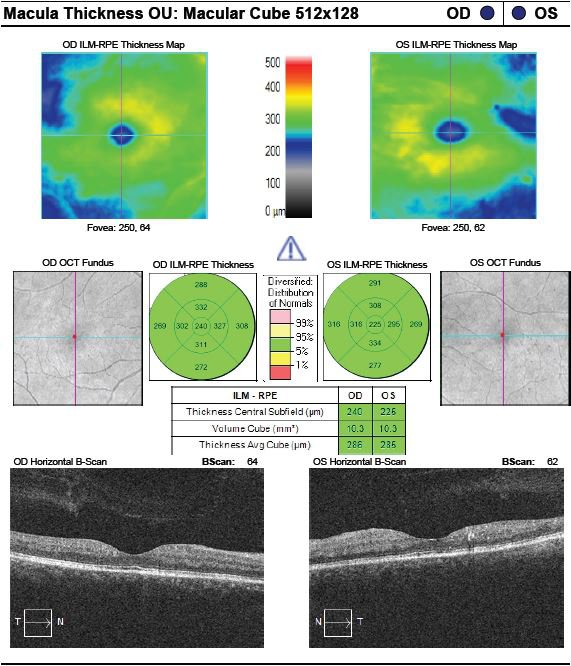Figure 1. Optical coherence tomography (OCT) of the macula of both eyes obtained two days prior to patient's loss of vision. Right eye demonstrates grossly normal findings and left eye reveals hard exudates in the parafoveal macula.