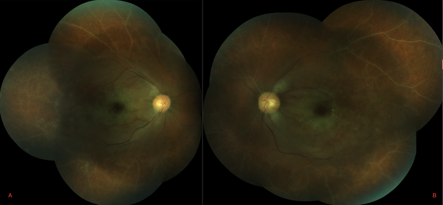 Figure 2. Fundus photography of right (A) and left (B) eyes two days after patient's loss of vision demonstrate pale macula as well as sclerotic/ghost vessels in both eyes.