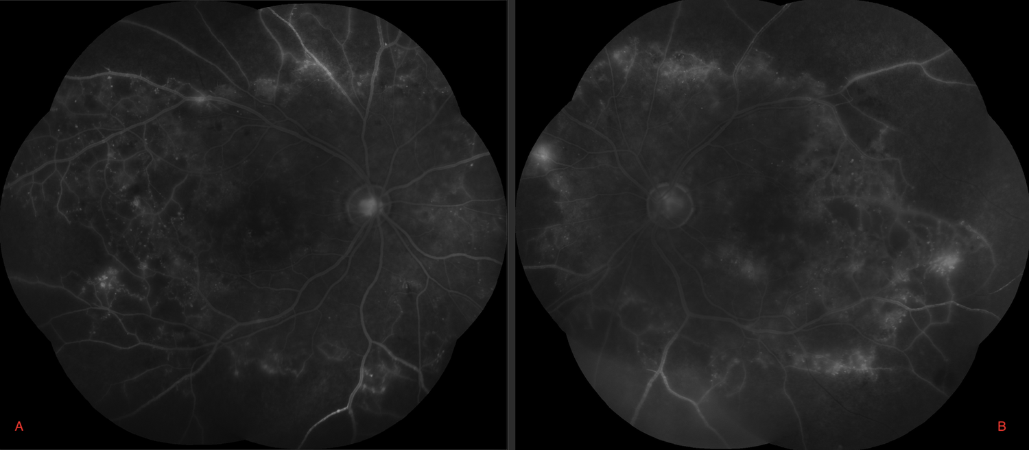 Figure 4. Fluorescein angiography of both eyes (A – right; B – left) demonstrate significant capillary non-perfusion in peripheral retina with sclerotic vessels.