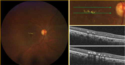 calrus-500-diabetic-retinopathy-exudates.png