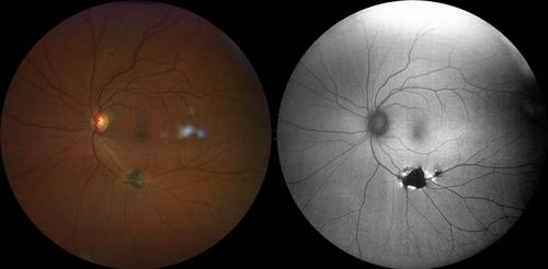 clarus-500-chorioretinal-atrophy.png