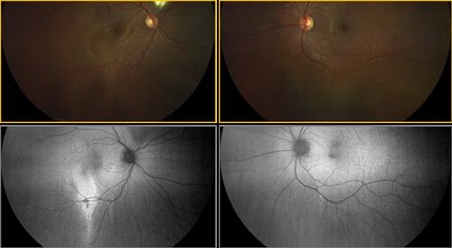 clarus-500-faf-of-retinal-atrophy.png