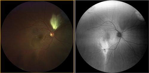 clarus-500-multifocal-retinal-atrophy.png