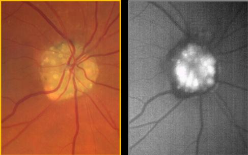 clarus-500-optic-nerve-head-drusen-FAF.png