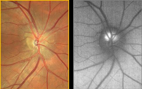 clarus-500-optic-nerve-head-drusen.png