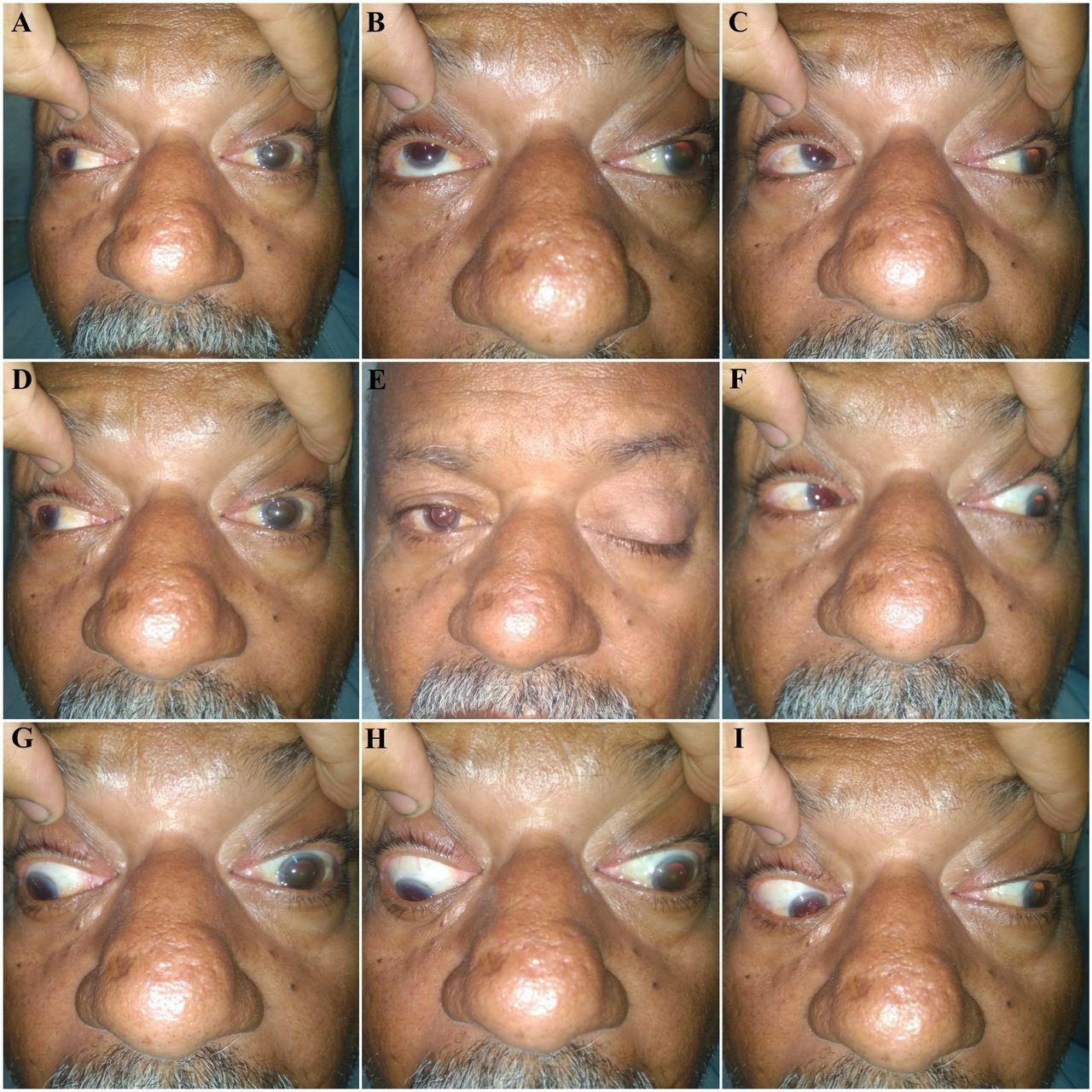 complete unilateral left oculomotor nerve palsy.jpg