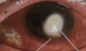 corneal-ulcer-red-eye.png