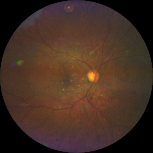 diabetic-retinopathy-taken-with-CLARUS-500.png