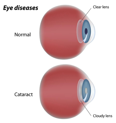 eye-conditions-caused-by-diabetes-cataract.png