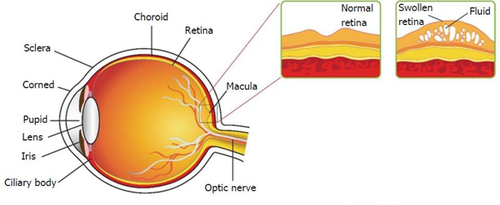 eye-conditions-caused-by-diabetes-swelling-of-retinal-layers.png