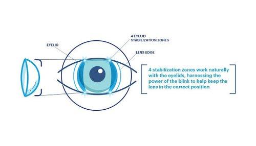 eyelid-stabilization.jpg