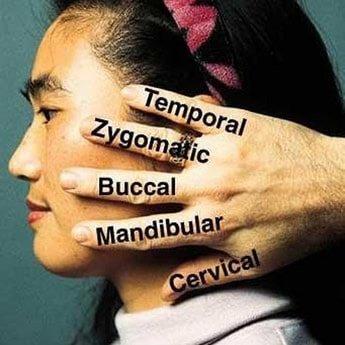 facial-nerve-5-fingers_orig.jpg