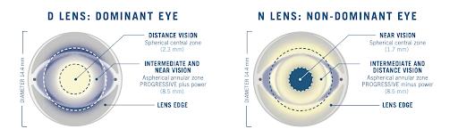 figure-1-best-contact-lens-presbyopia-astigmatism.png