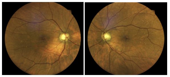 figure-11-dilated-fundus-exam.png