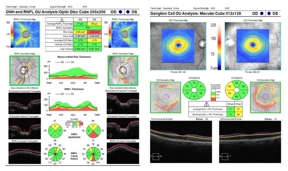 figure-12-pano-map-analysis-2.png