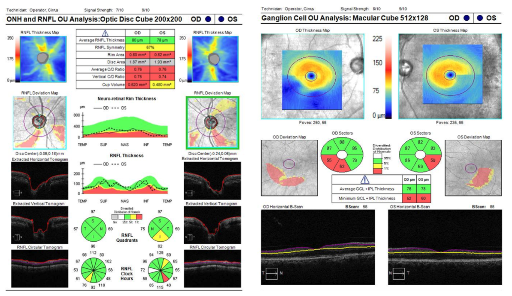 figure-16-oct-rnfl-macula-thinning.png