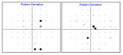 figure-19-pattern-deviation.png
