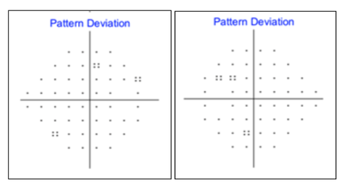 figure-22-pattern-deviation-sita-standard.png