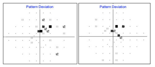 figure-23-pattern-deviation-sita-faster.png