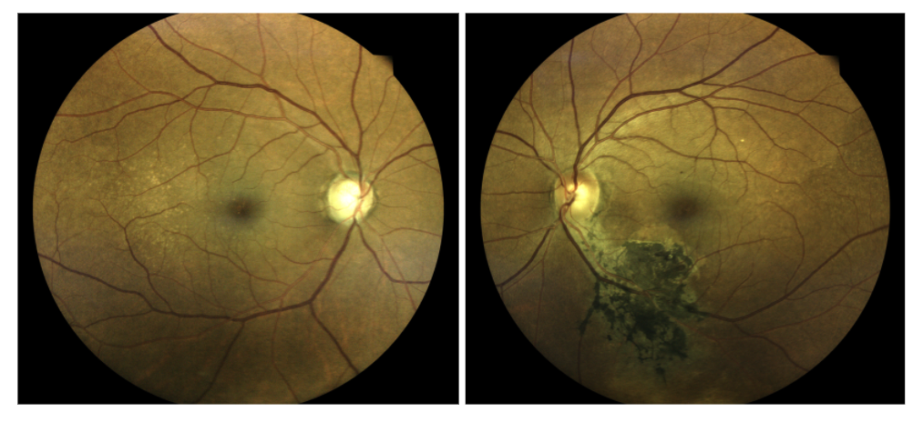 figure-24-dilated-fundus.png