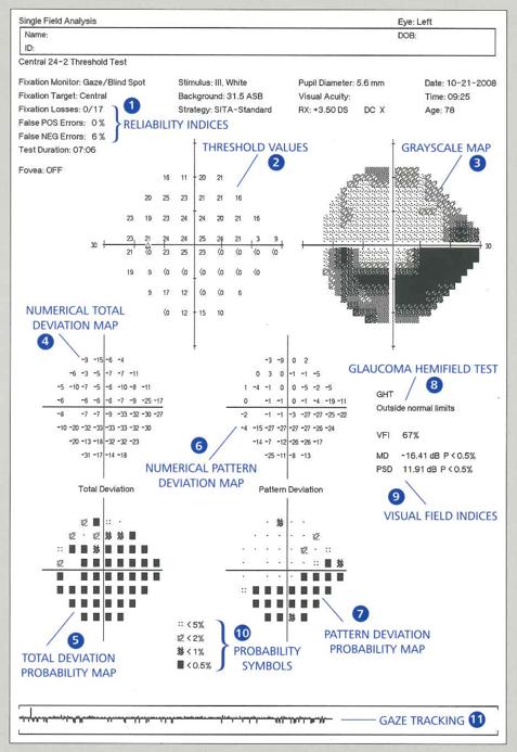 figure-3-humphrey-vfa-single-field-analysis.png