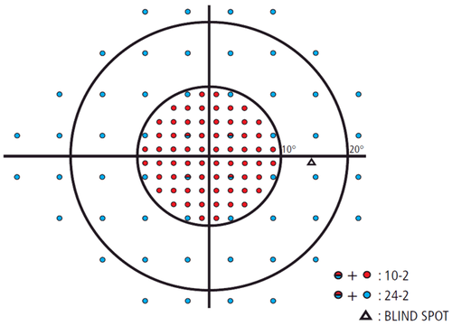 figure-6-right-eye-visual-field.png